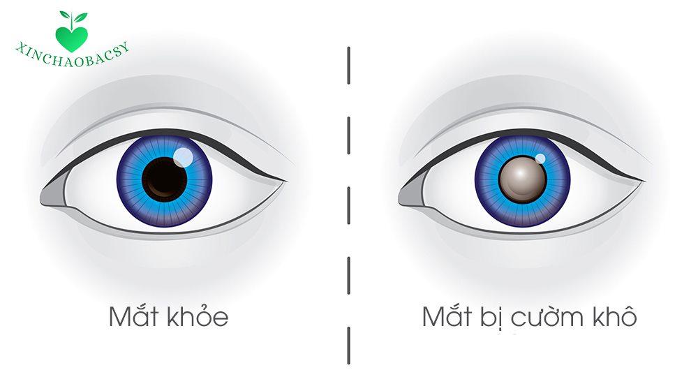 Bệnh cườm khô – Tất cả thông tin quan trọng cần nắm rõ để bảo vệ mắt